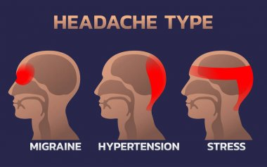 Types of Headaches Infographics design template, icon vector ill