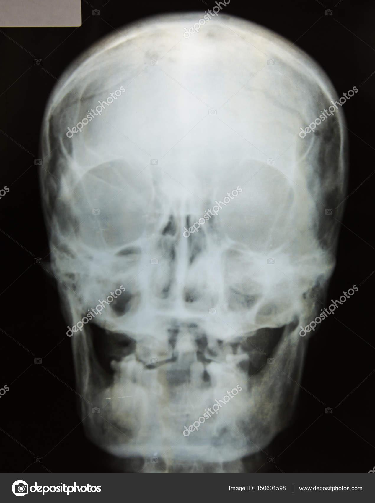 radiografía del cráneo — Foto de stock © toeytoey #150601598