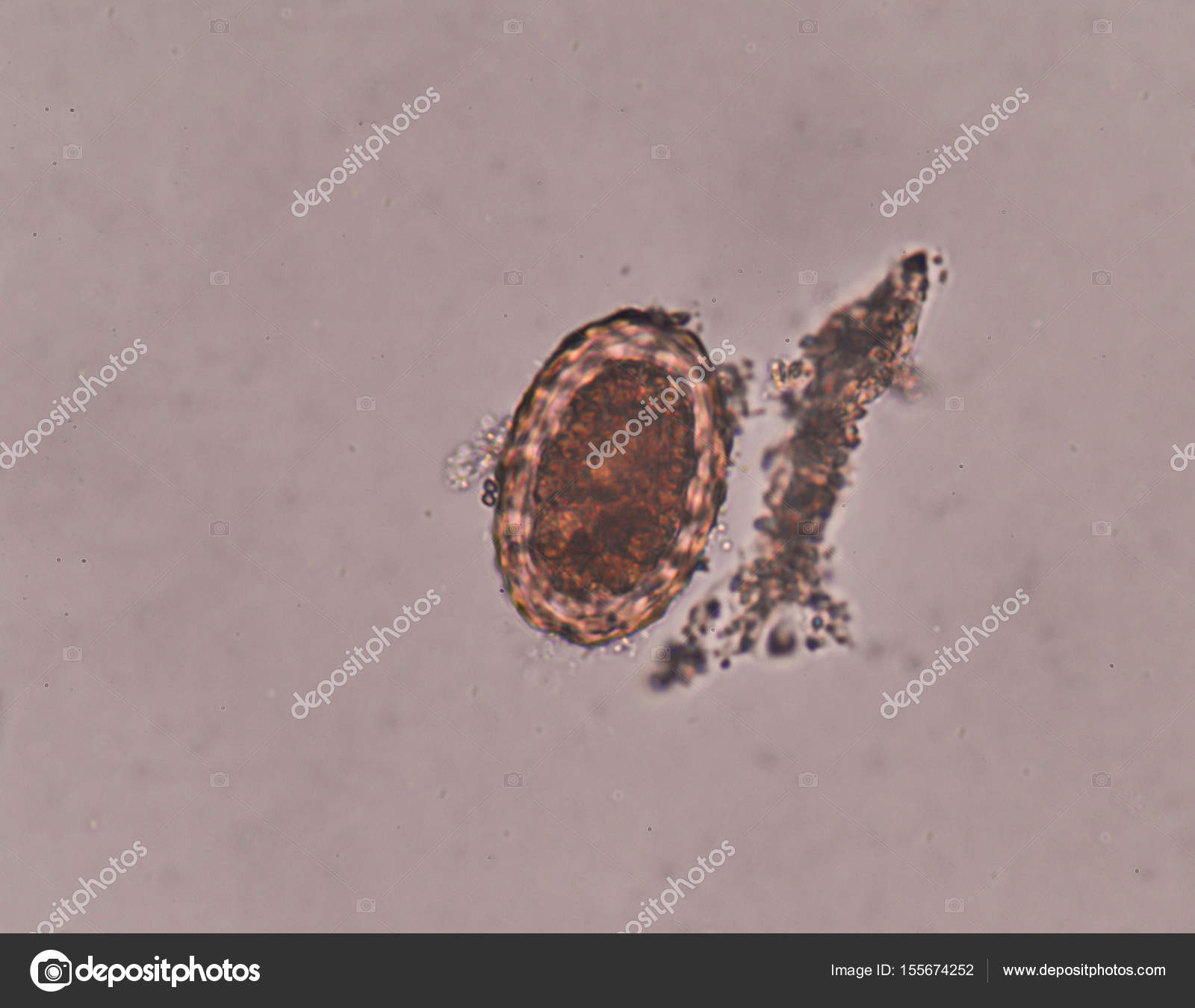 Ascariasis In Stool