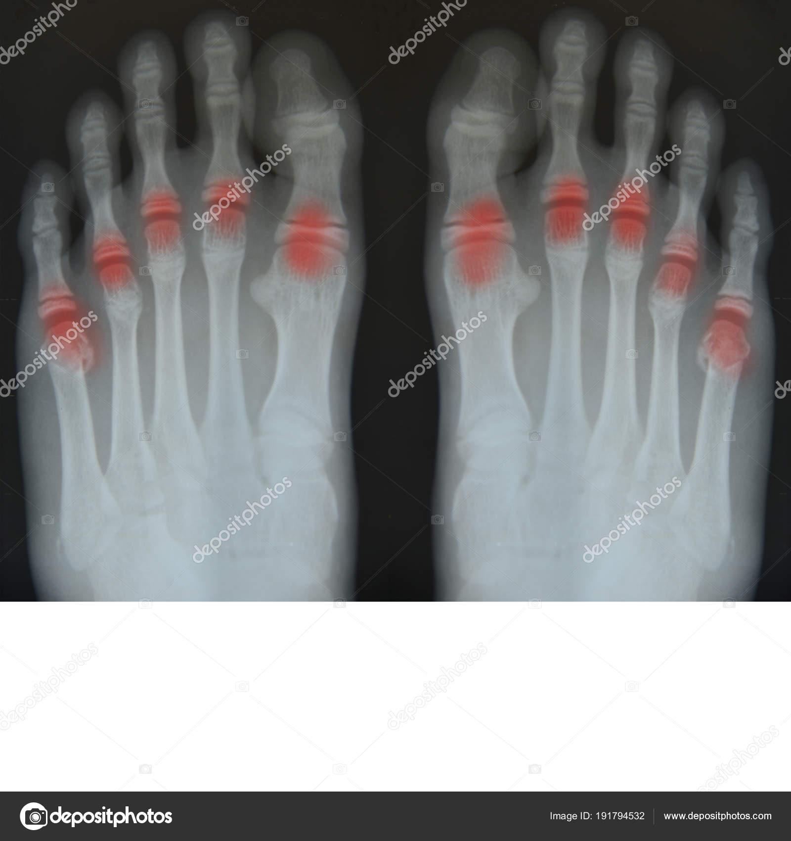 Knochen des Fußes Röntgenfilm — Stockfoto © toeytoey #191794532