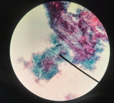 Cells in reproductive female cytology and histology concept.