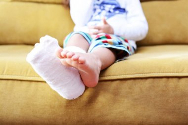 Little child with plaster bandage on leg heel fractured