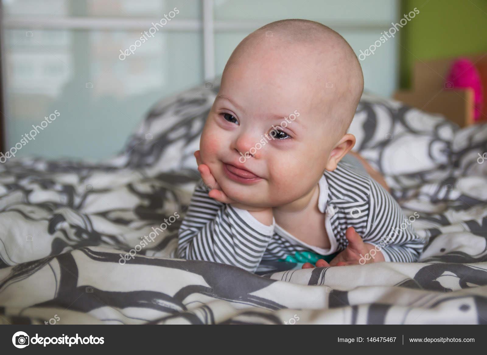 ダウン症の男の子のかわいい赤ちゃんの肖像画 — ストック写真 © dtatiana