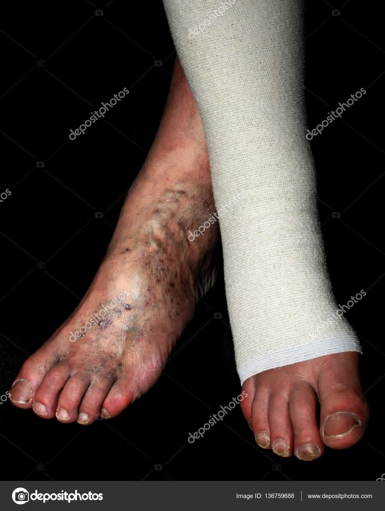 noga umflat în varicoză