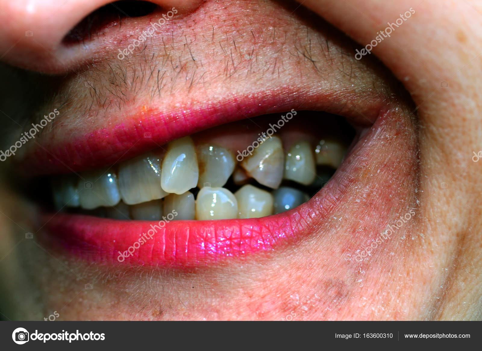 Dientes Chuecos En La Boca Ortodoncia Oclusión Dental Defectuosa