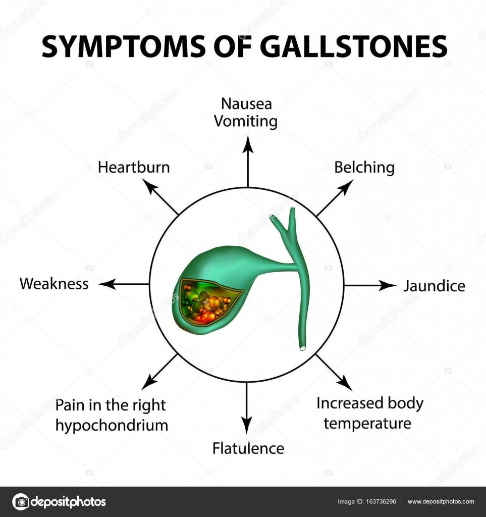 Síntomas de piedras en la vesícula biliar. Infografía. Ilustración ...