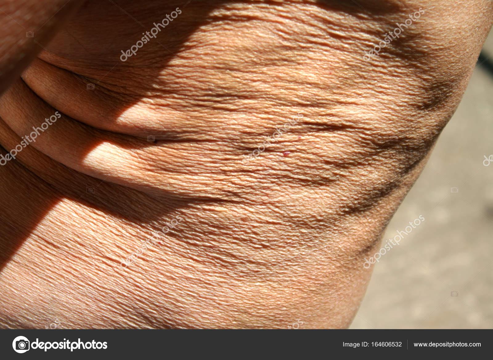 slappe huid