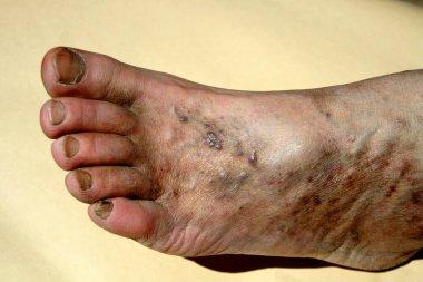 Varicose veins. Thrombosis. Foot. Extension of veins on the leg.
