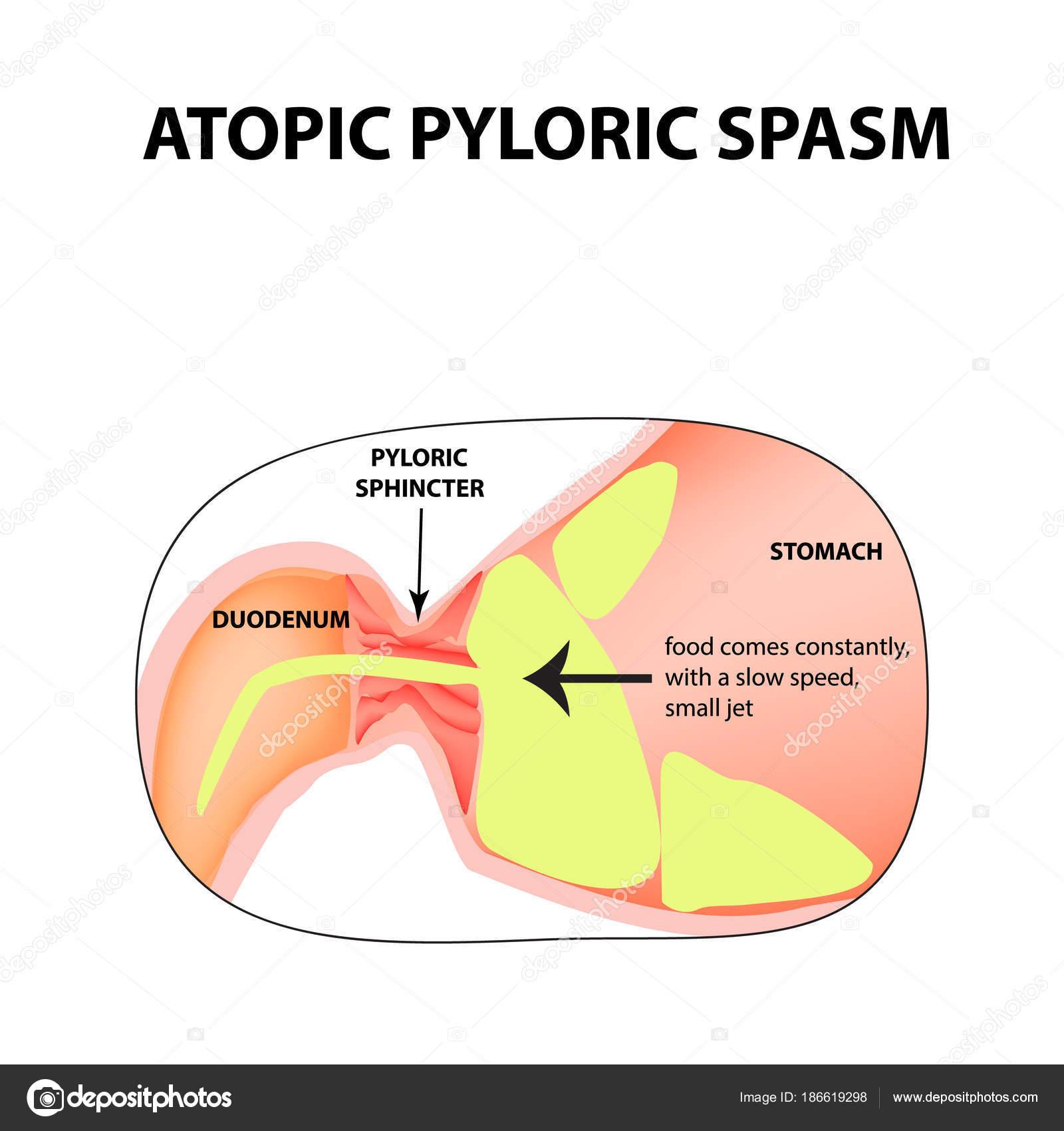 spasms of the pylorus. Pylorospasm. atonic. Pyloric sphincter of the ...