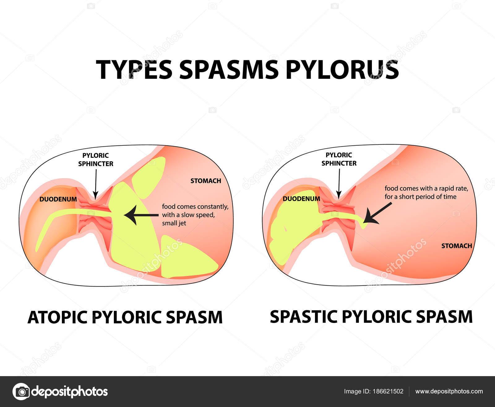 Tipos de espasmos del píloro. Pylorospasm. Espástica y atónicas ...
