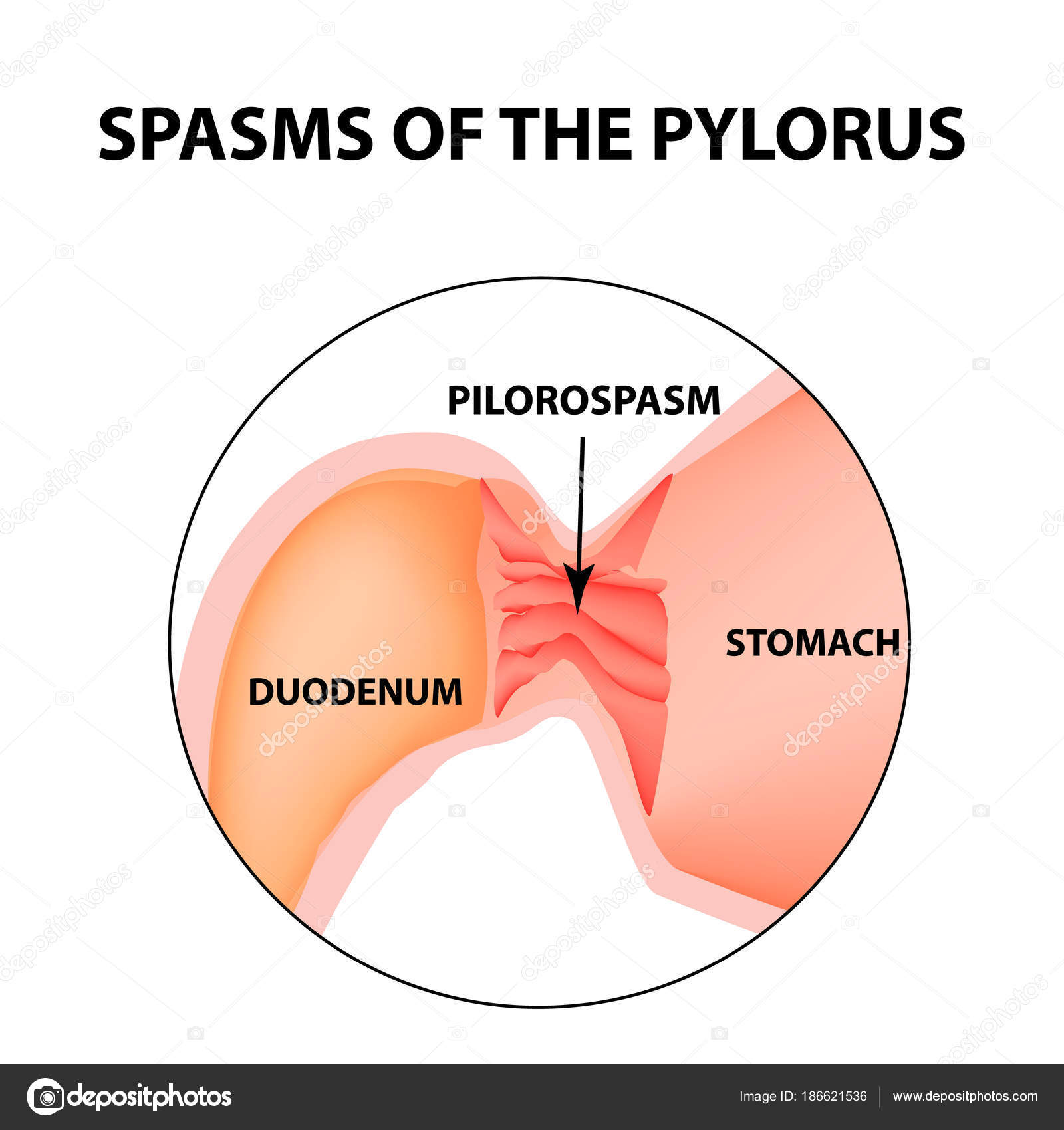 Spasms Of The Pylorus Pylorospasm Spastic And Atonic Pyloric