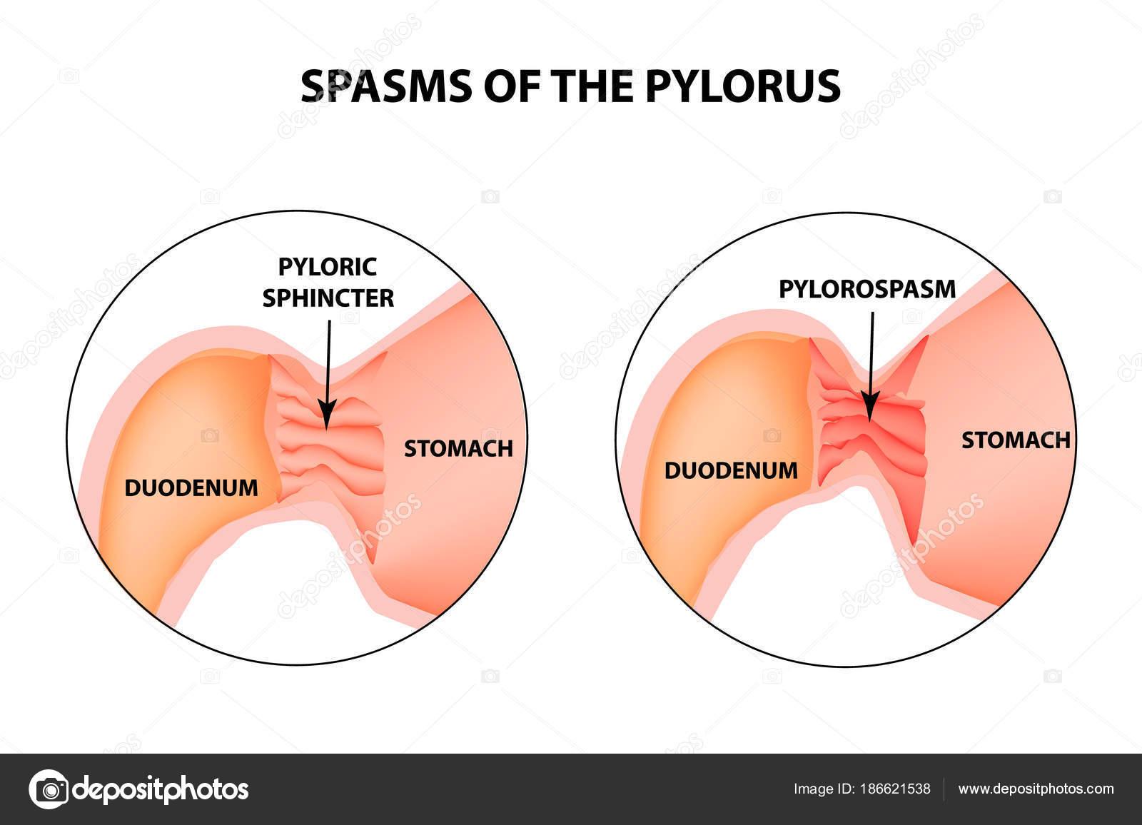 spasms of the pylorus. Pylorospasm. Spastic and atonic. Pyloric ...