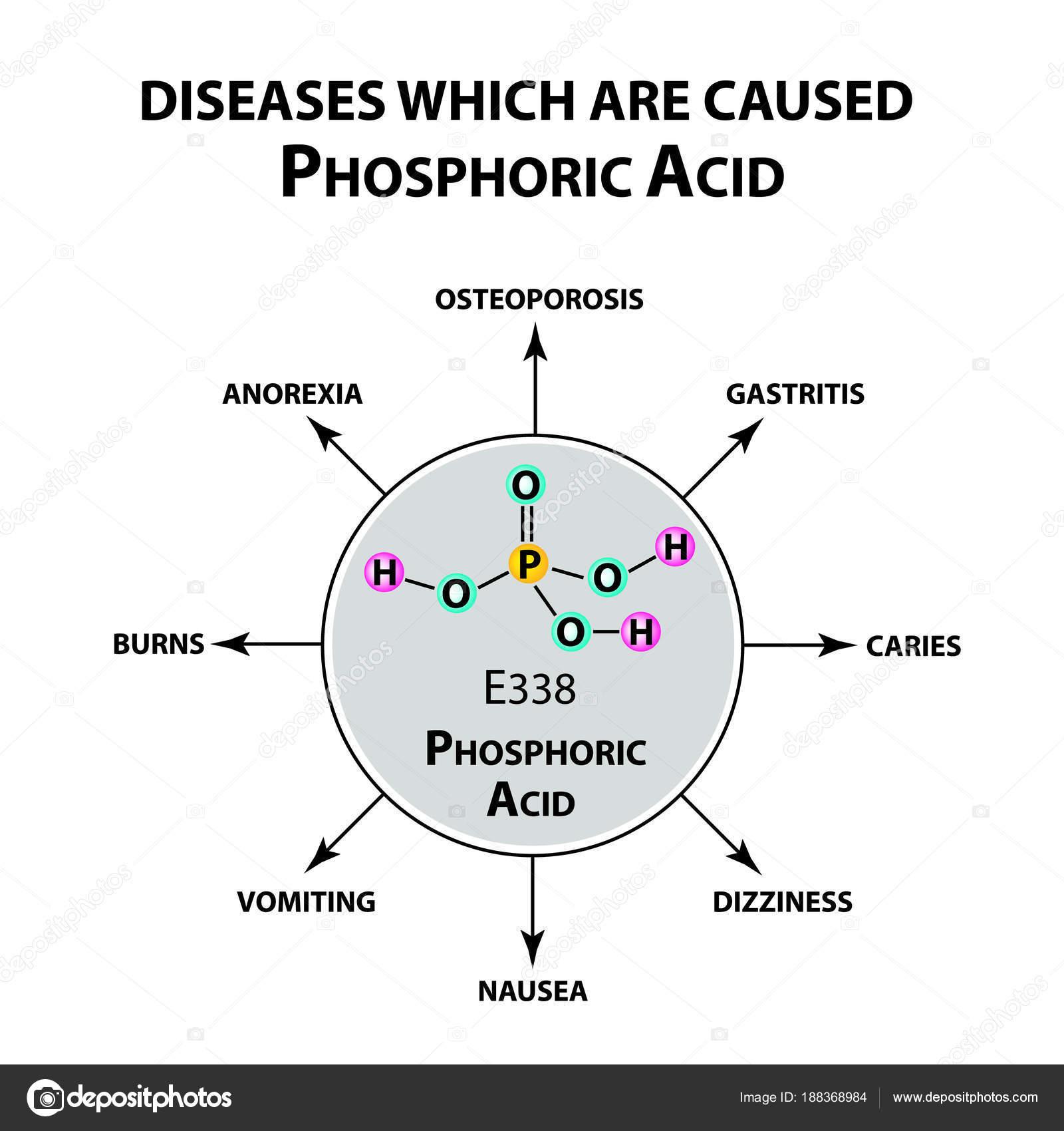 Krankheiten, die Orthophosphorsäure Säure verursachen. Die chemische ...