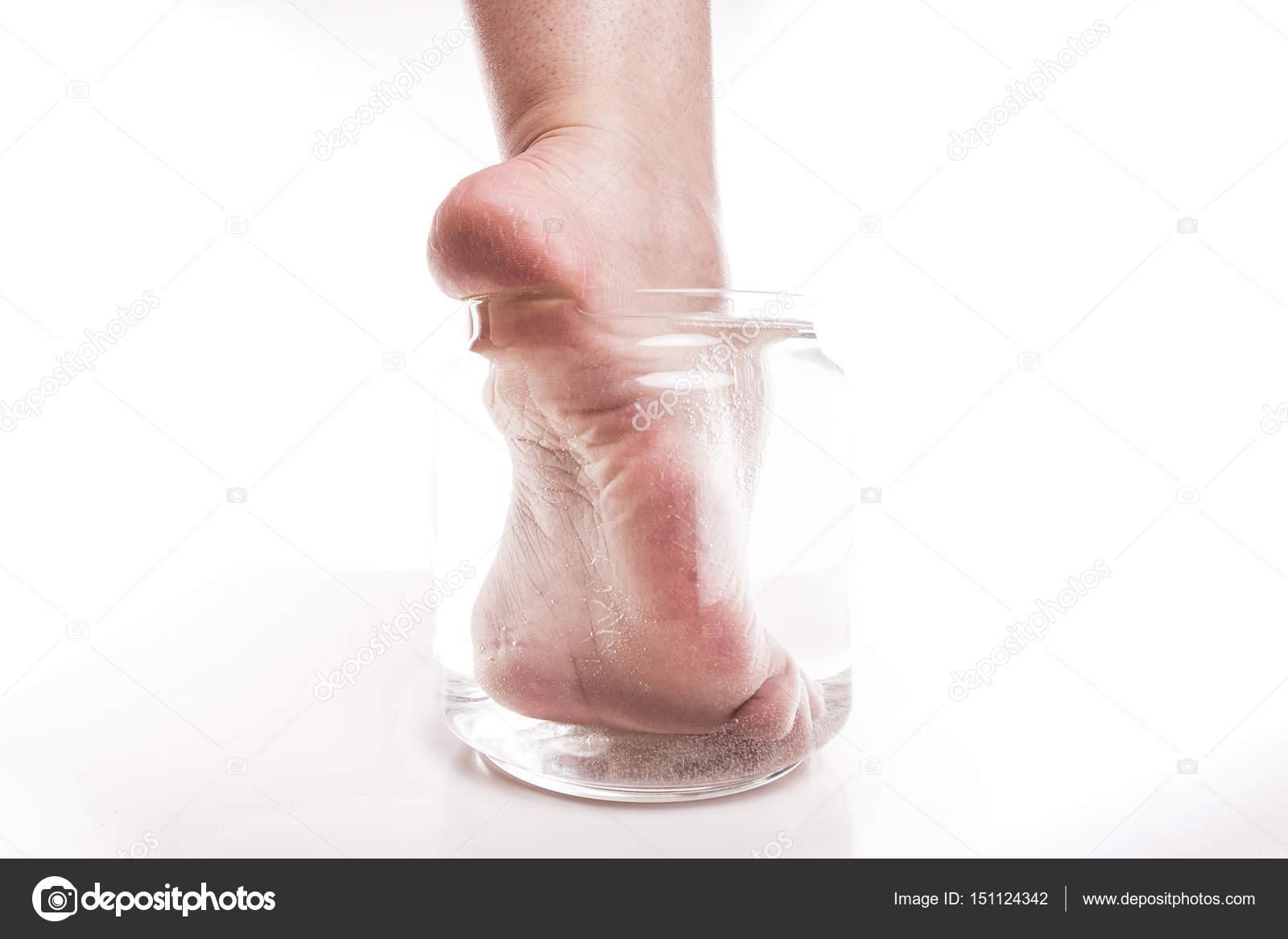 vatten i foten