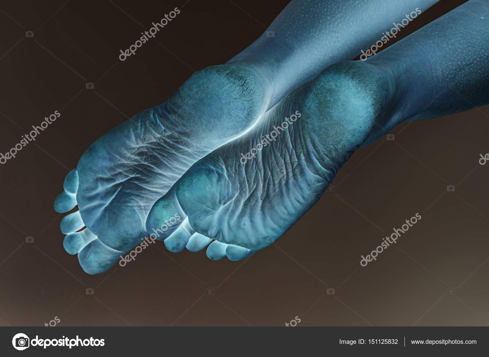 trockene trockene Fersen weiblicher Füße — Stockfoto © fotoevent ...