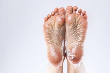 dehydrated skin on feet