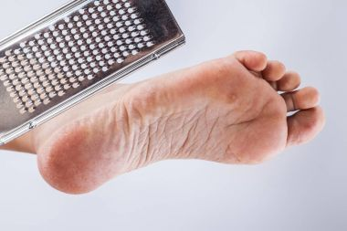 dehydrated foot with a grater
