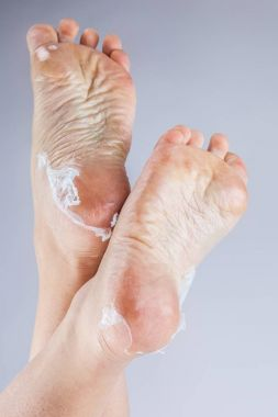 dehydrated skin on feet