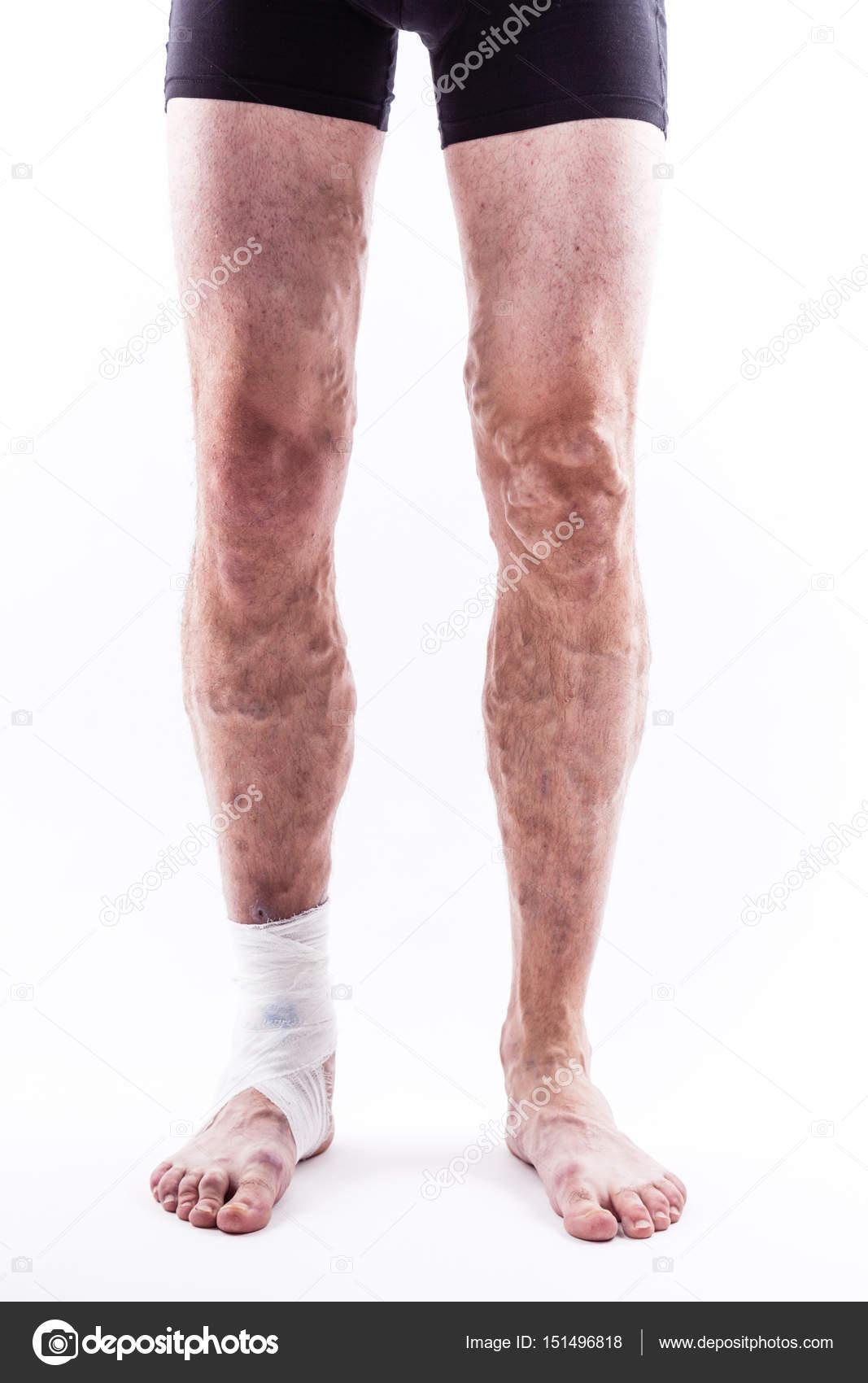 flubiet in de benen