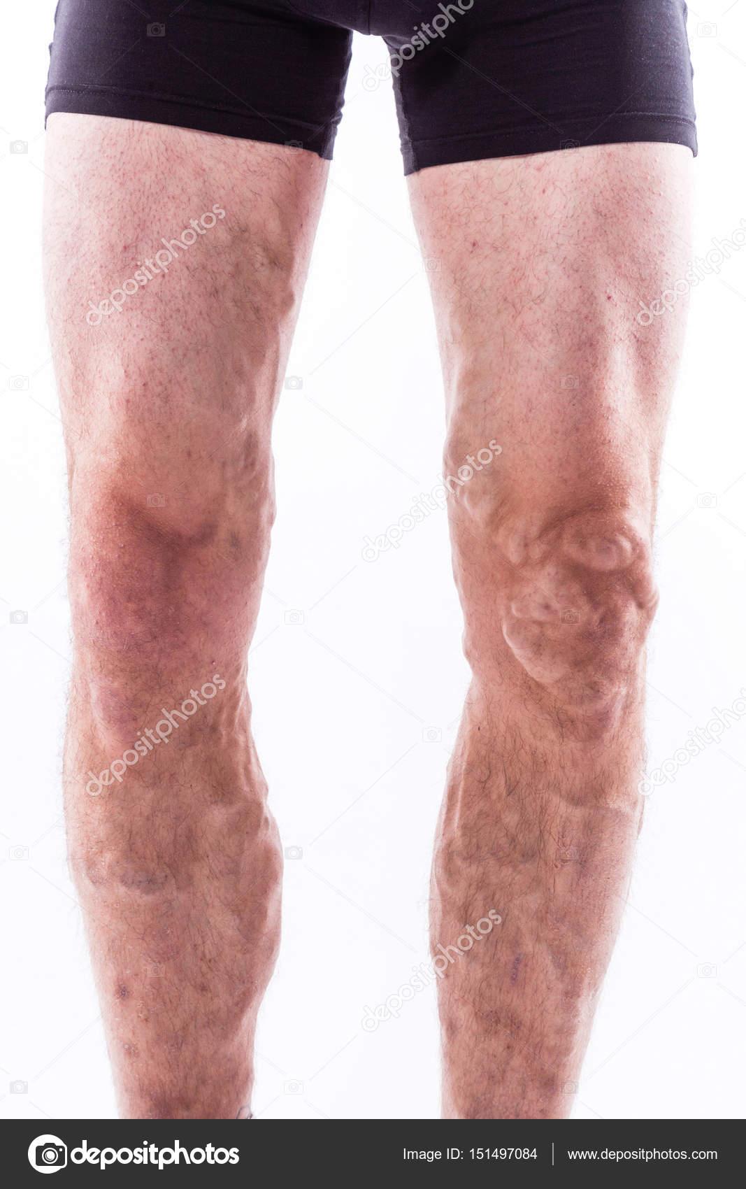 menschliche Beine mit blockierten Venen — Stockfoto © fotoevent ...