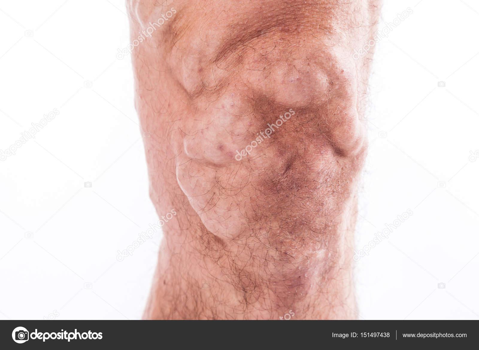 Menschliches Bein mit blockierten Venen — Stockfoto © fotoevent ...