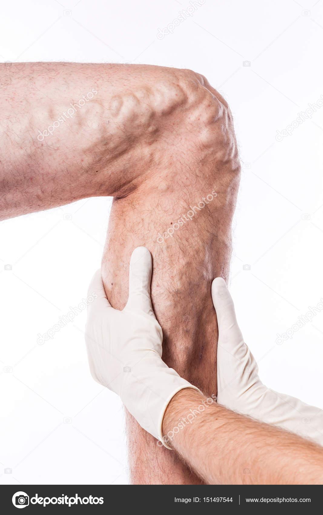 Arzt untersucht Bein mit blockierten Venen — Stockfoto © fotoevent ...