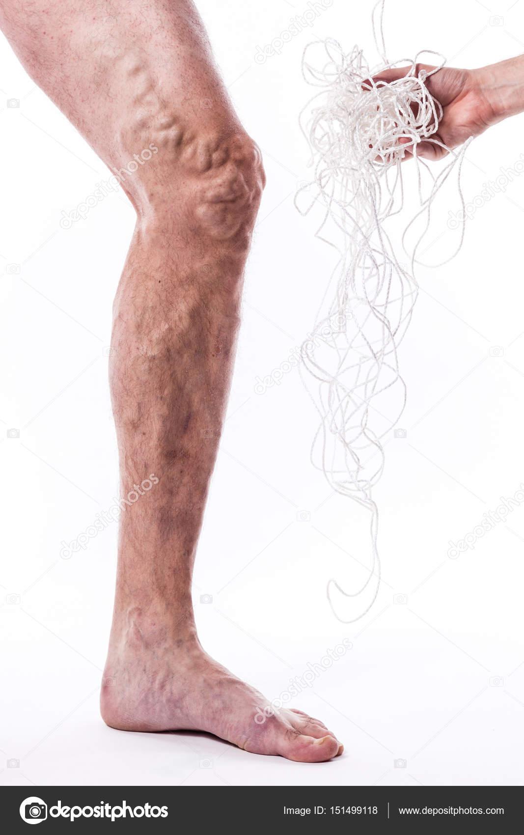 Menschliches Bein mit blockierten Venen und Seil — Stockfoto ...