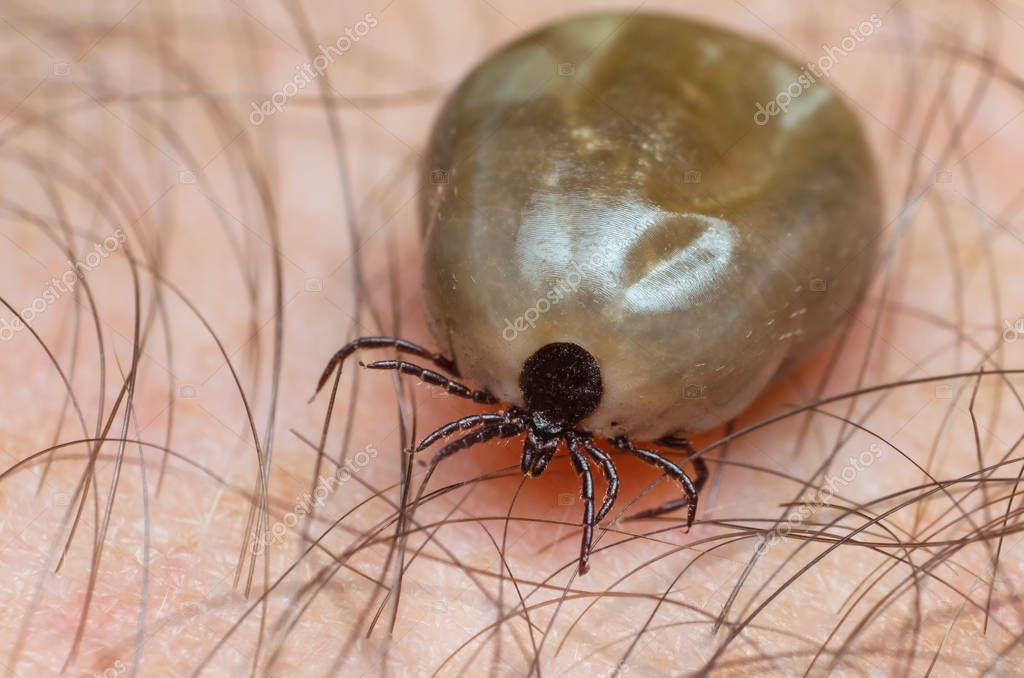 Tick filled with blood sitting on human skin