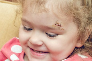 A little girl with a scar above her eyebrow, a deep wound sewn up