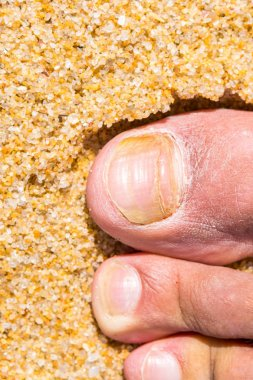 Ringworm. Mycosis to the toe. Beach sand background.