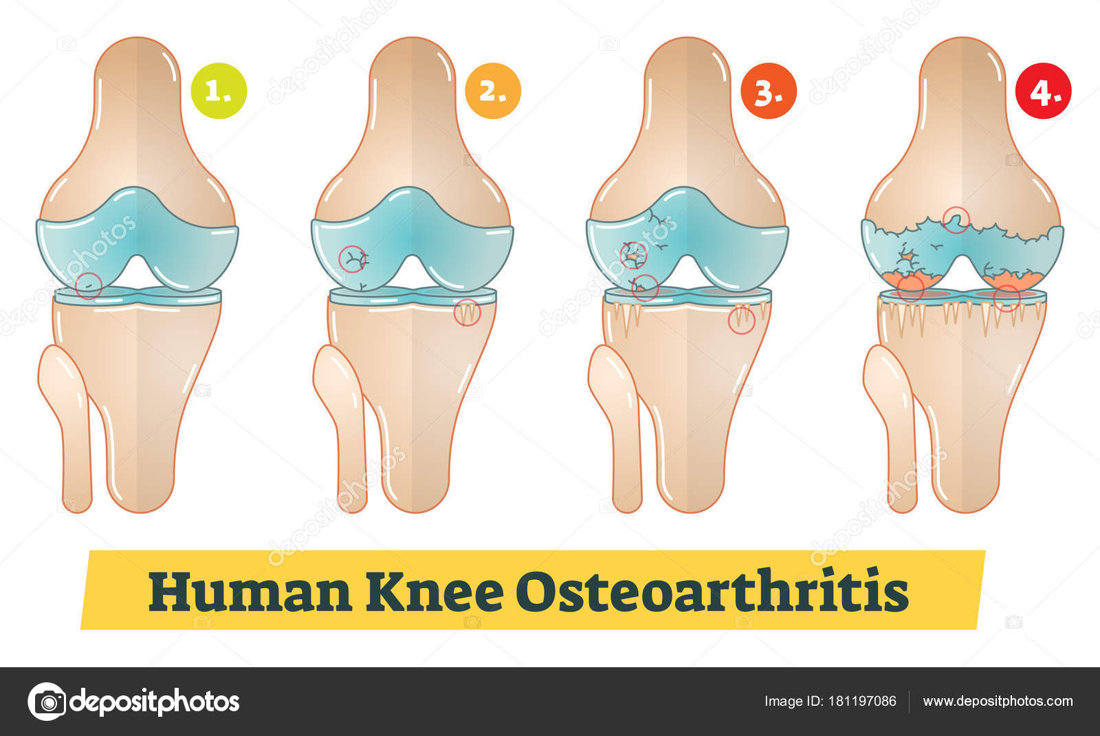 Ilustración de diagrama de osteoartritis de la rodilla humana ...