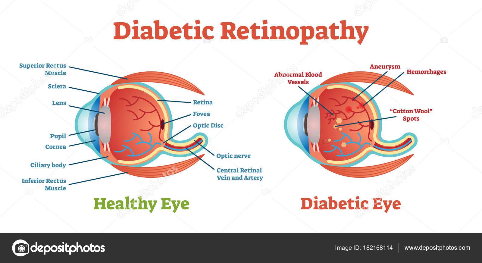 Diabetic Retinopathy vector illustration diagram, anatomical scheme ...