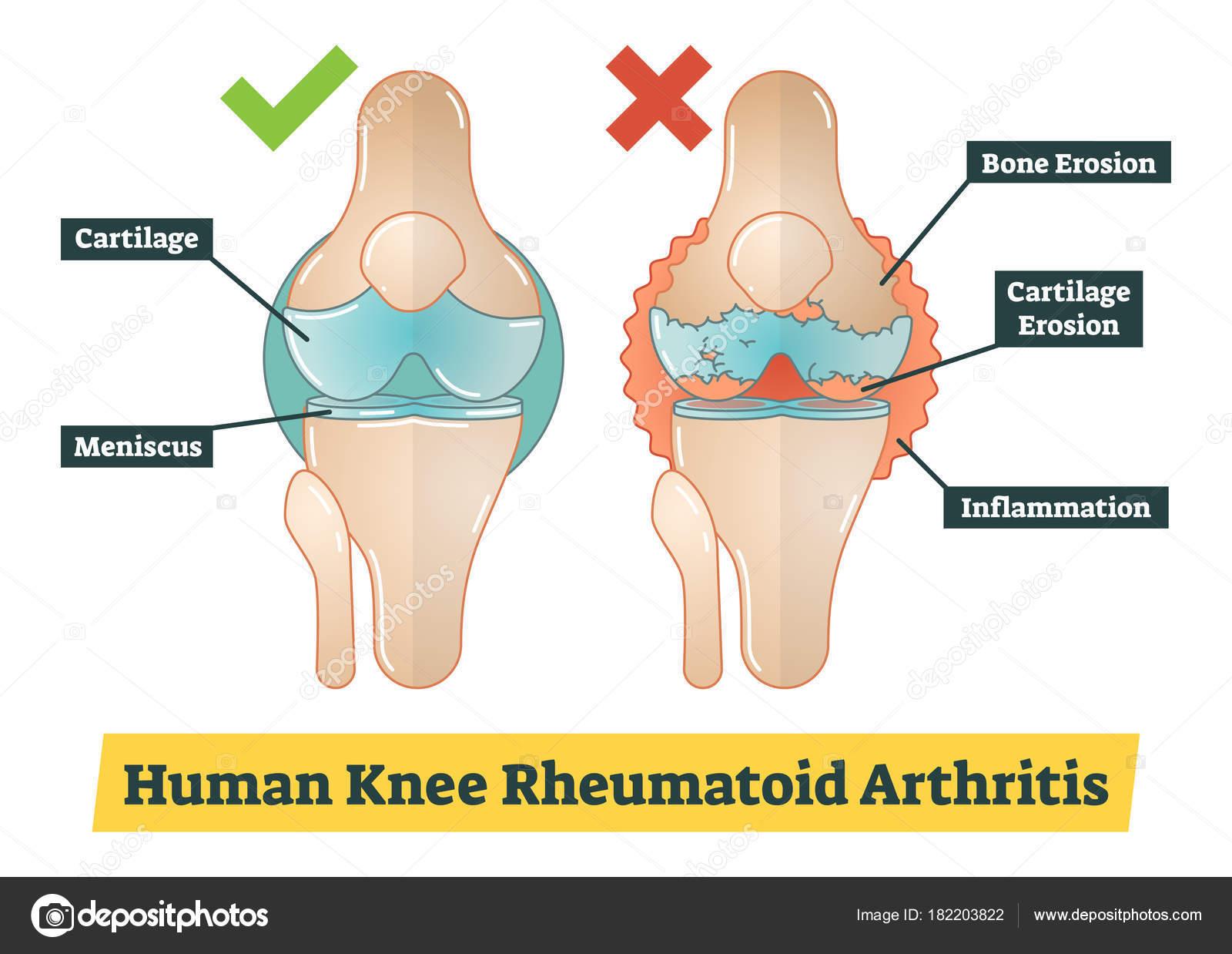 Human knee rheumatoid arthritis diagram illustration stock vector human knee rheumatoid arthritis diagram illustration stock vector ccuart Image collections