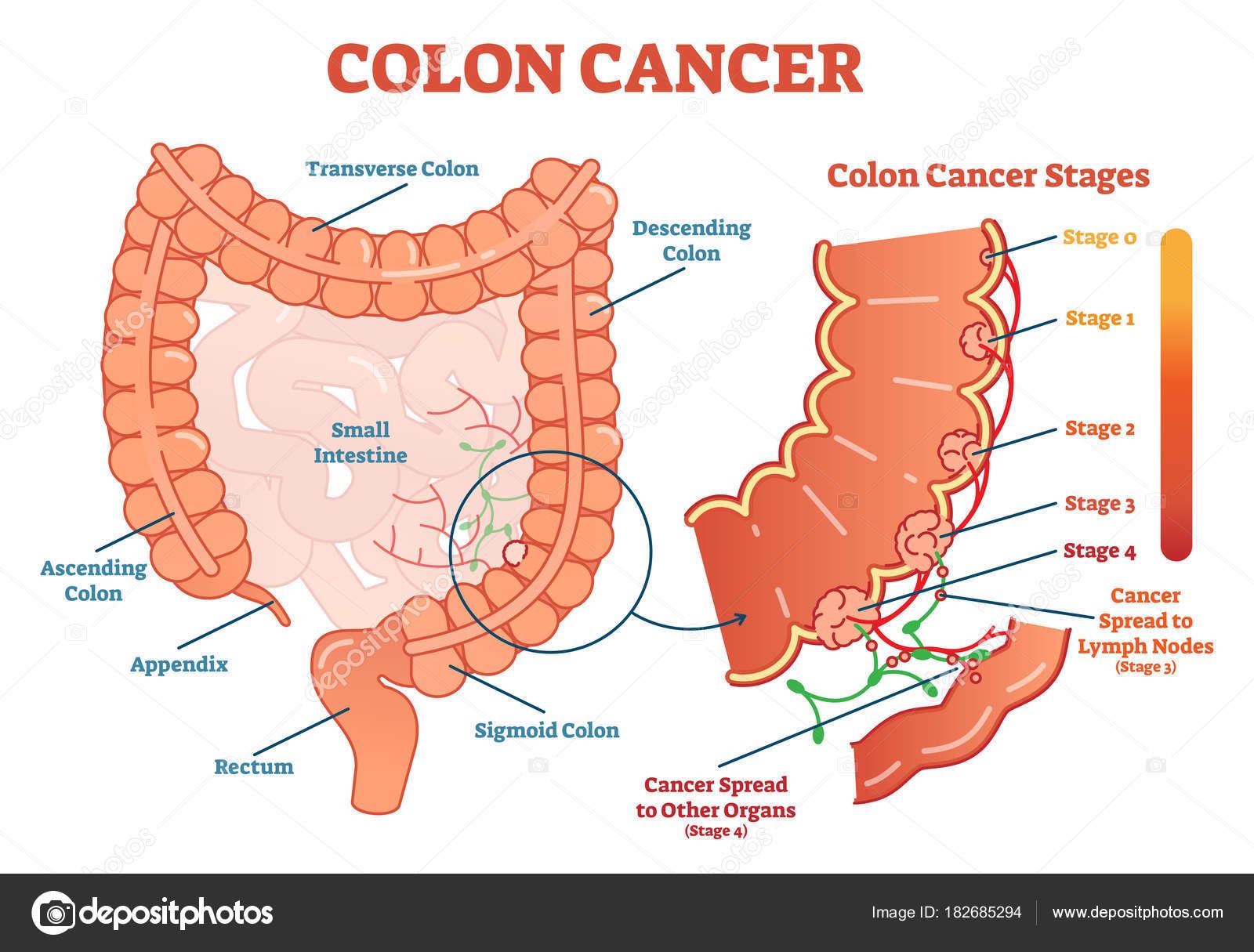 Colon cancer médica vector ilustración esquema diagrama anatómico ...