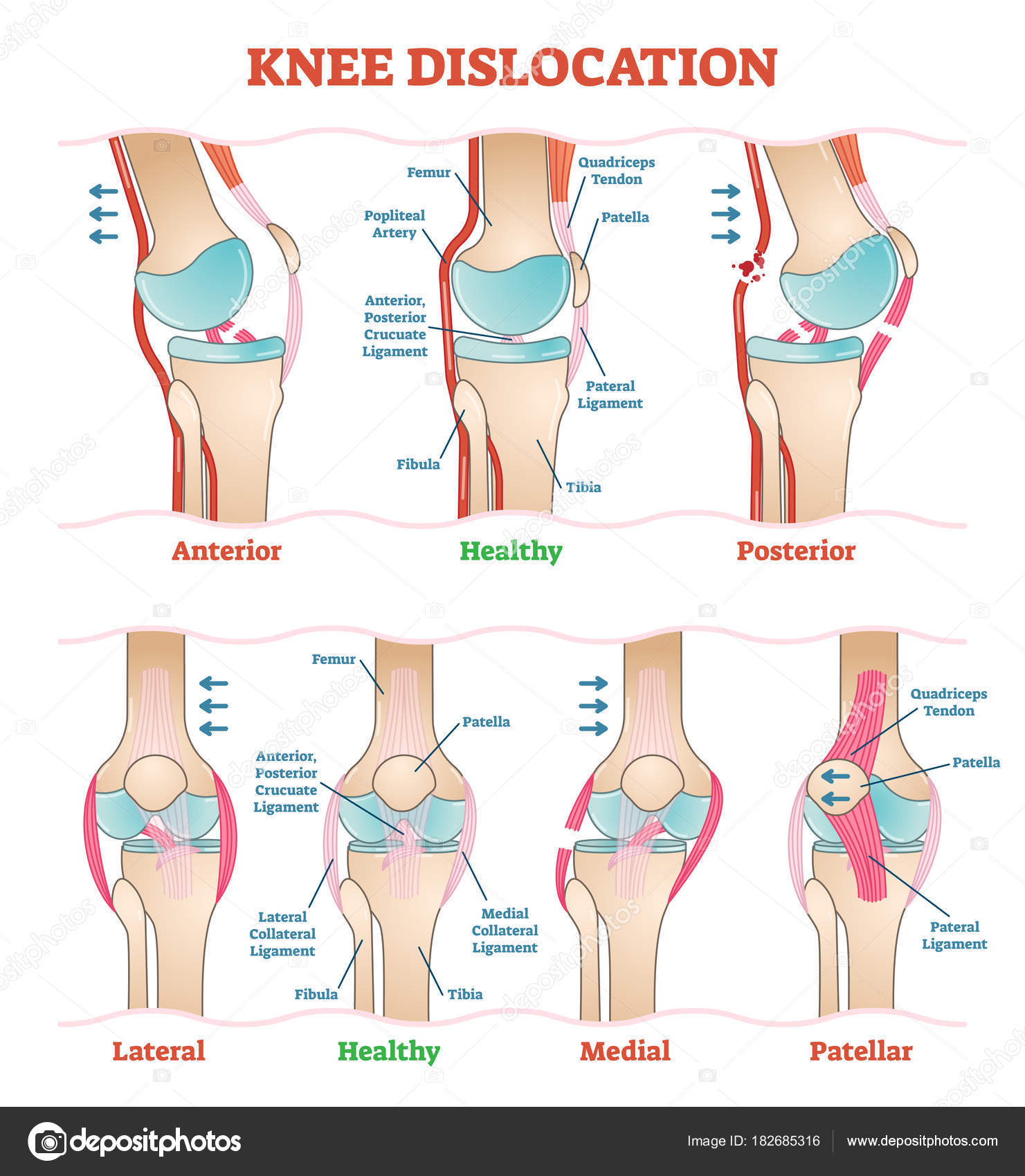 Knee dislocations medical vector illustration diagrams anatomical knee dislocations medical vector illustration diagrams anatomical knee injury types scheme stock ccuart Gallery