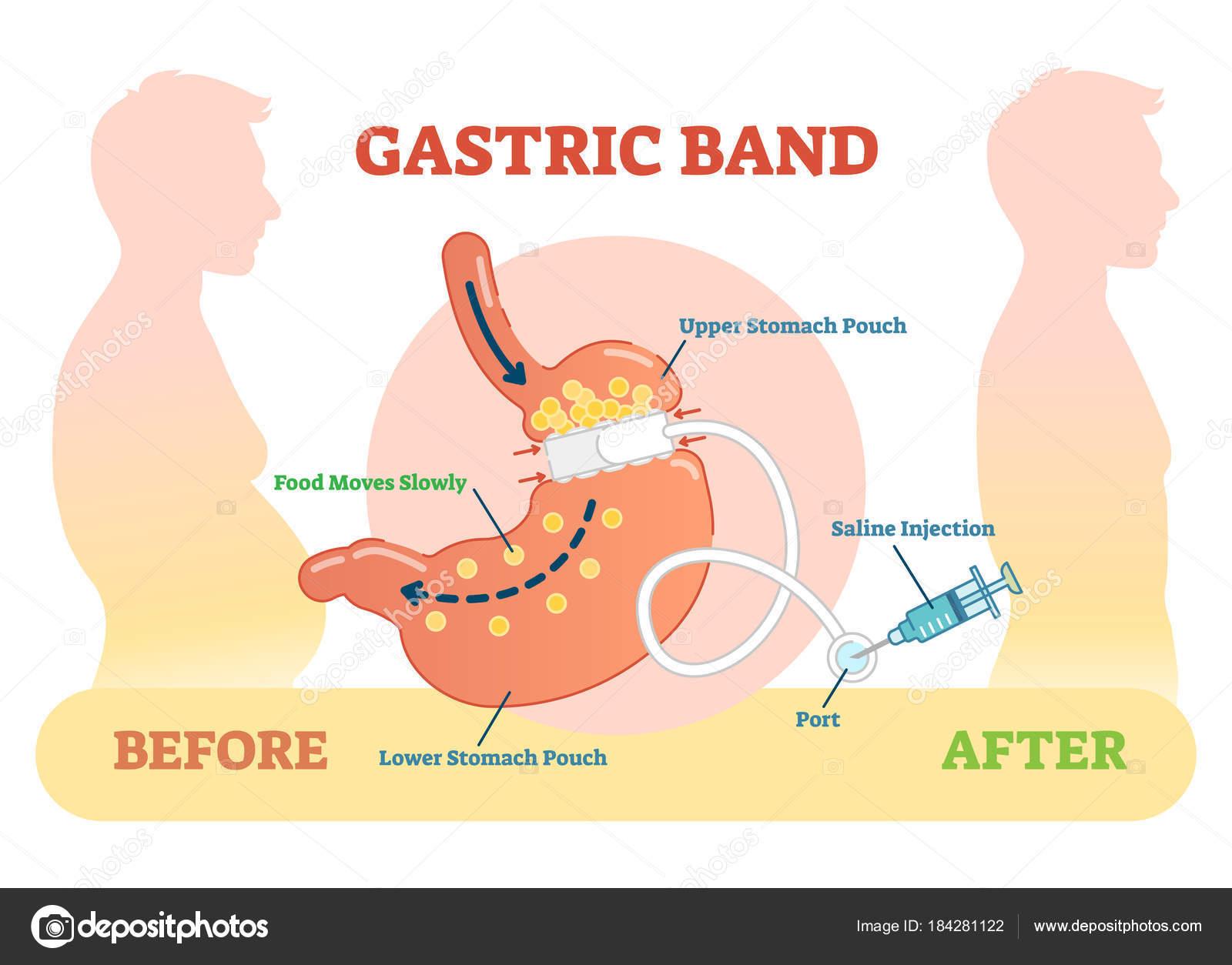 Gástrico banda anatómica ilustración diagrama del vector, médico ...