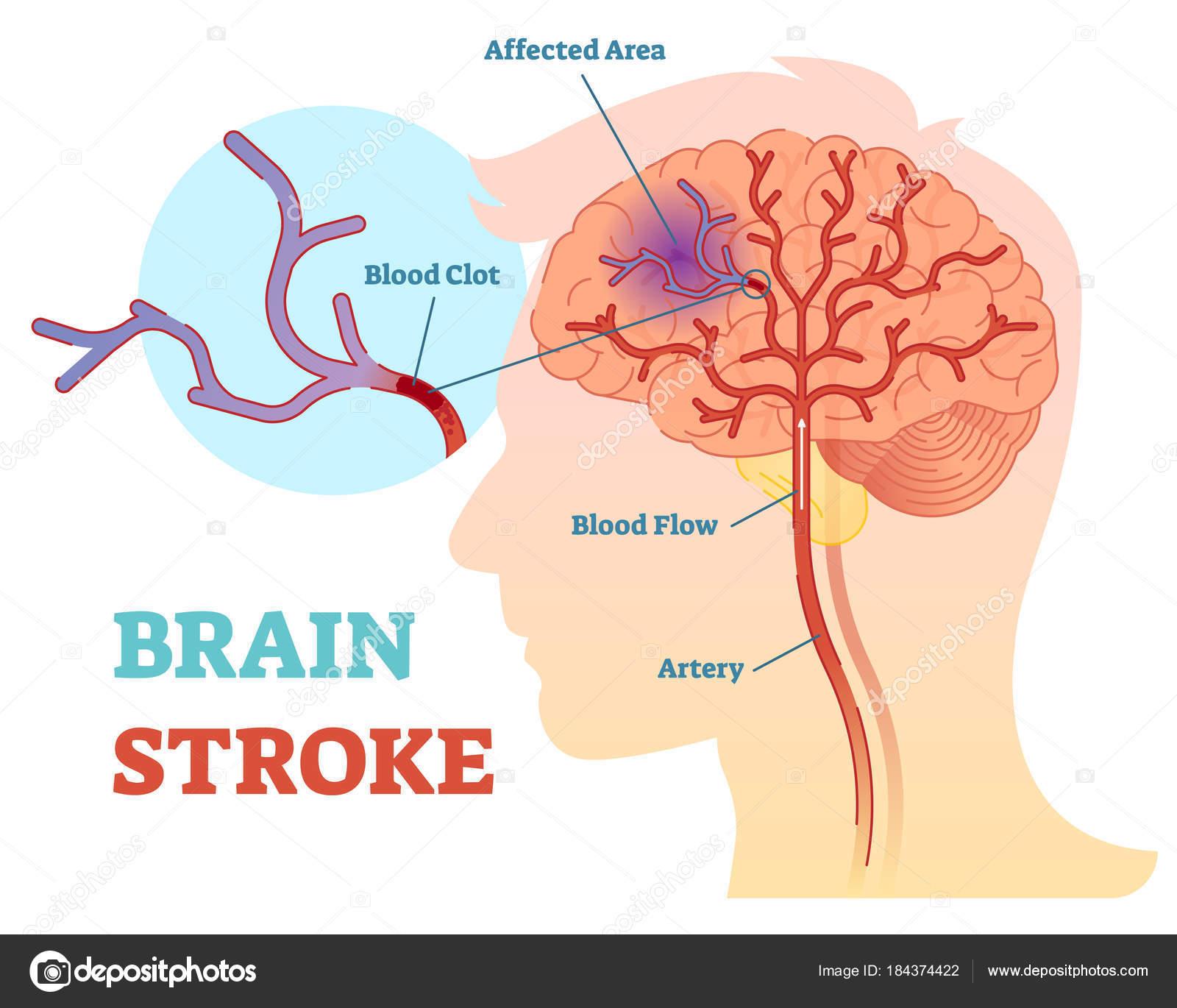Cerebro movimiento anatómico vector ilustración diagrama, esquema ...