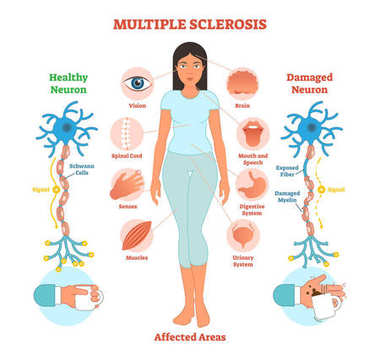 Multiple sclerosis anatomical vector illustration diagram, medical scheme.