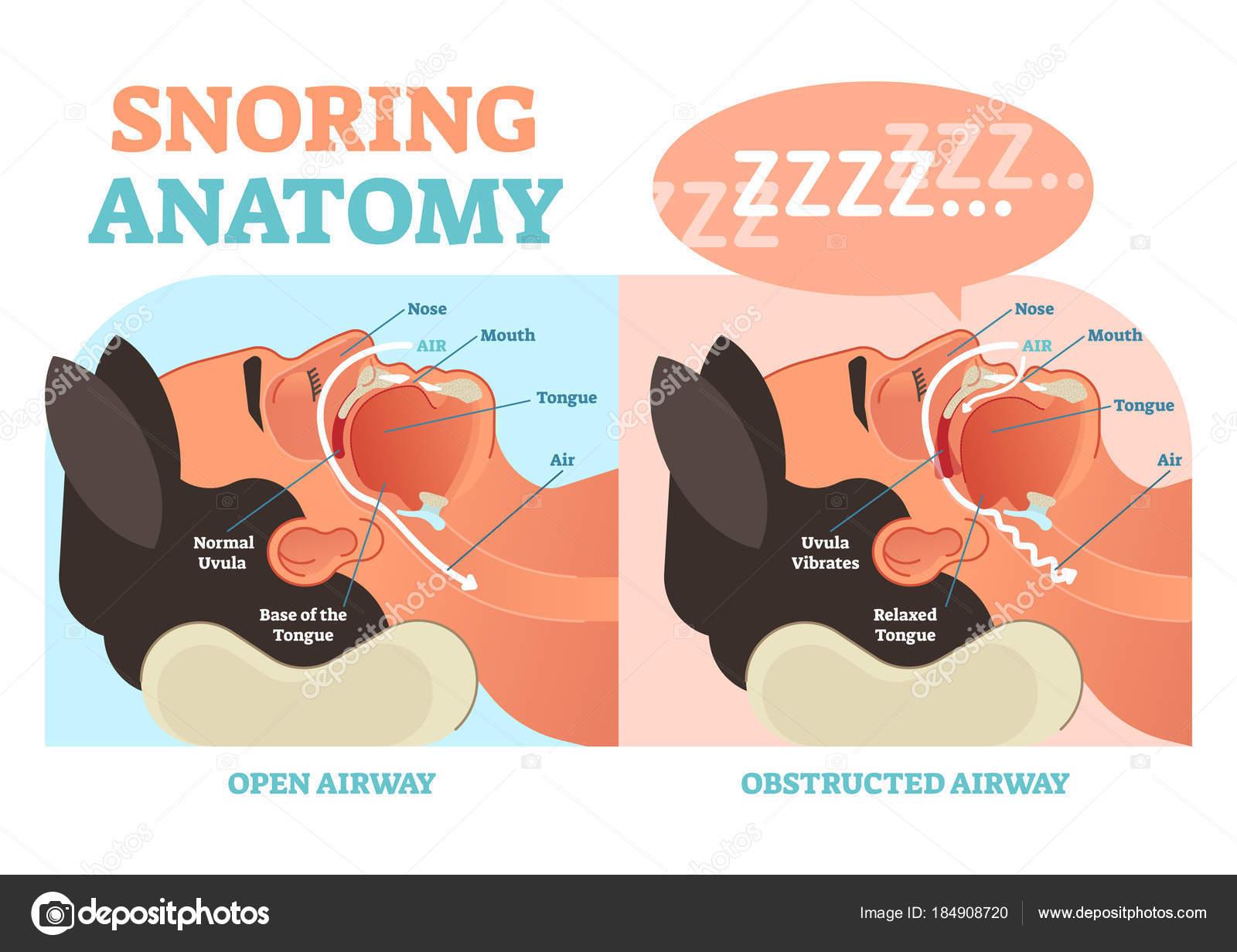 Ronquidos diagrama del vector médico de la anatomía con el paso del ...