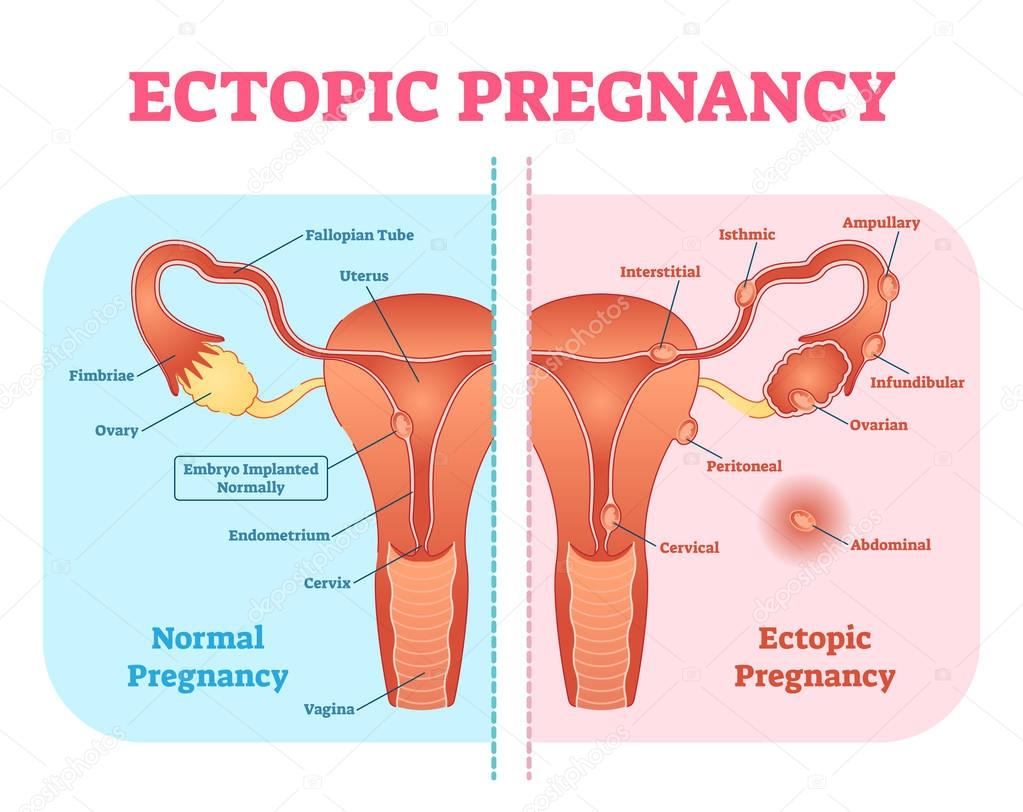 Ectopic Pregnancy Or Tubal Pregnancy Medical Diagram With Female Reproductive System And Various