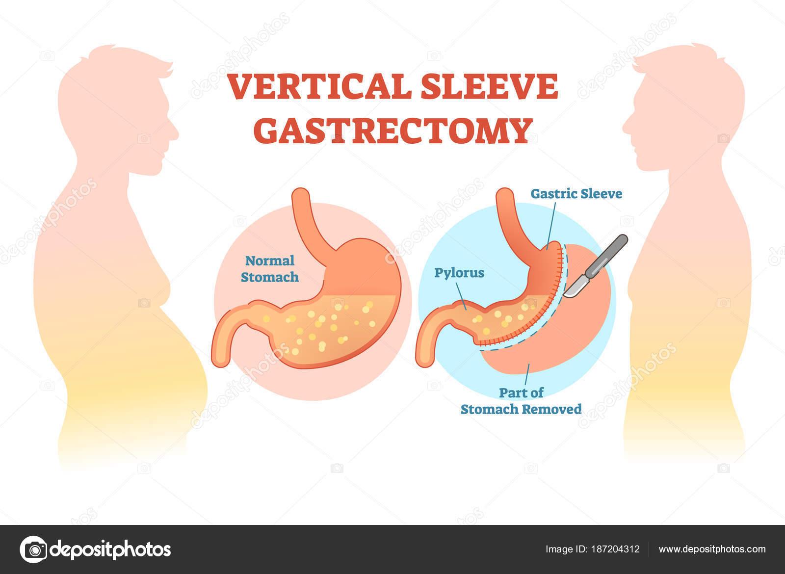 Corte vertical diagrama de ilustración médica vector de gastrectomía ...