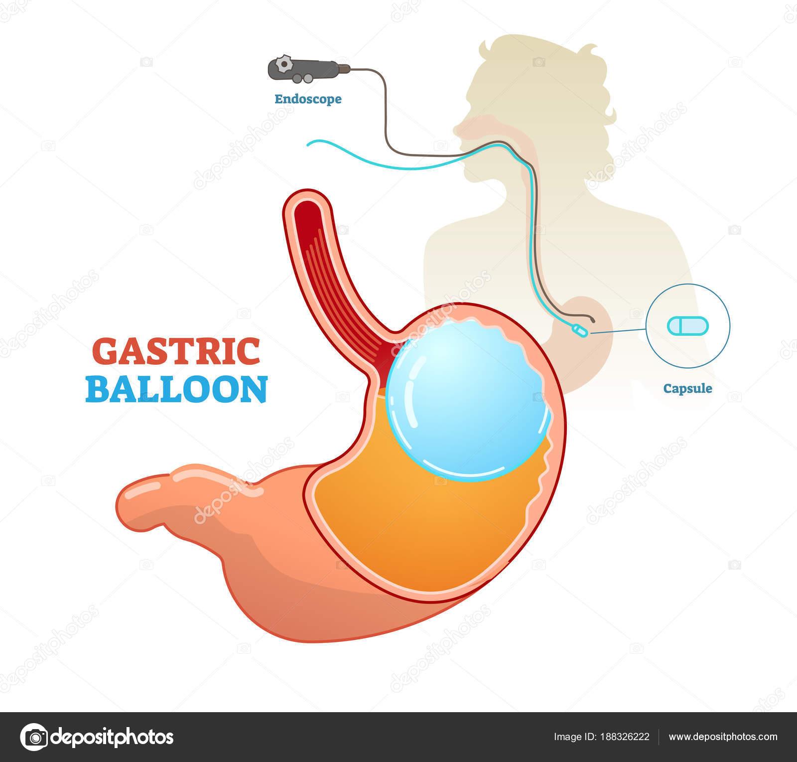 Balón gástrico procedimiento médico concepto diagrama, Ilustración ...