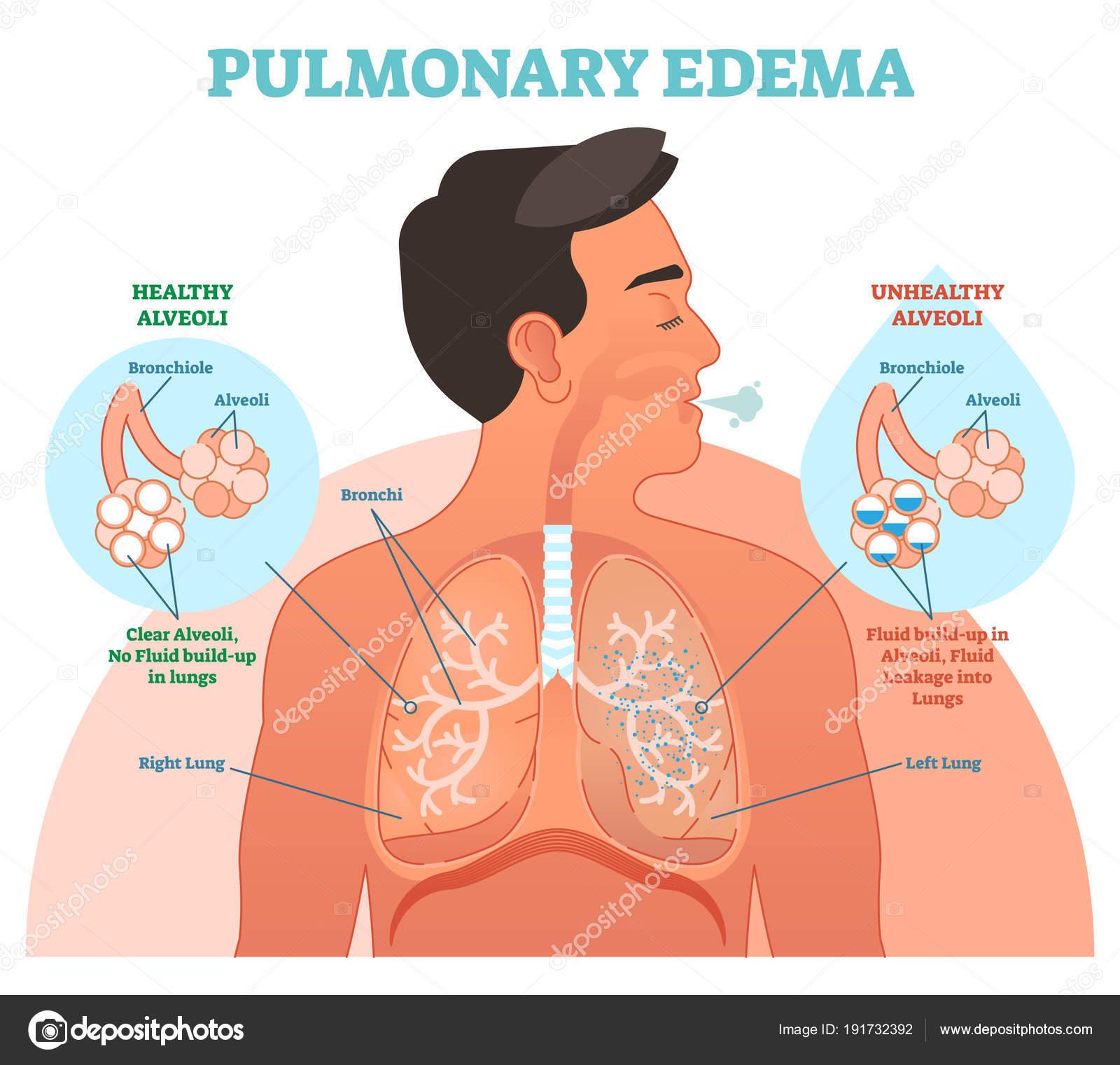 Edema pulmonar, diagrama de ilustración del vector de problema ...