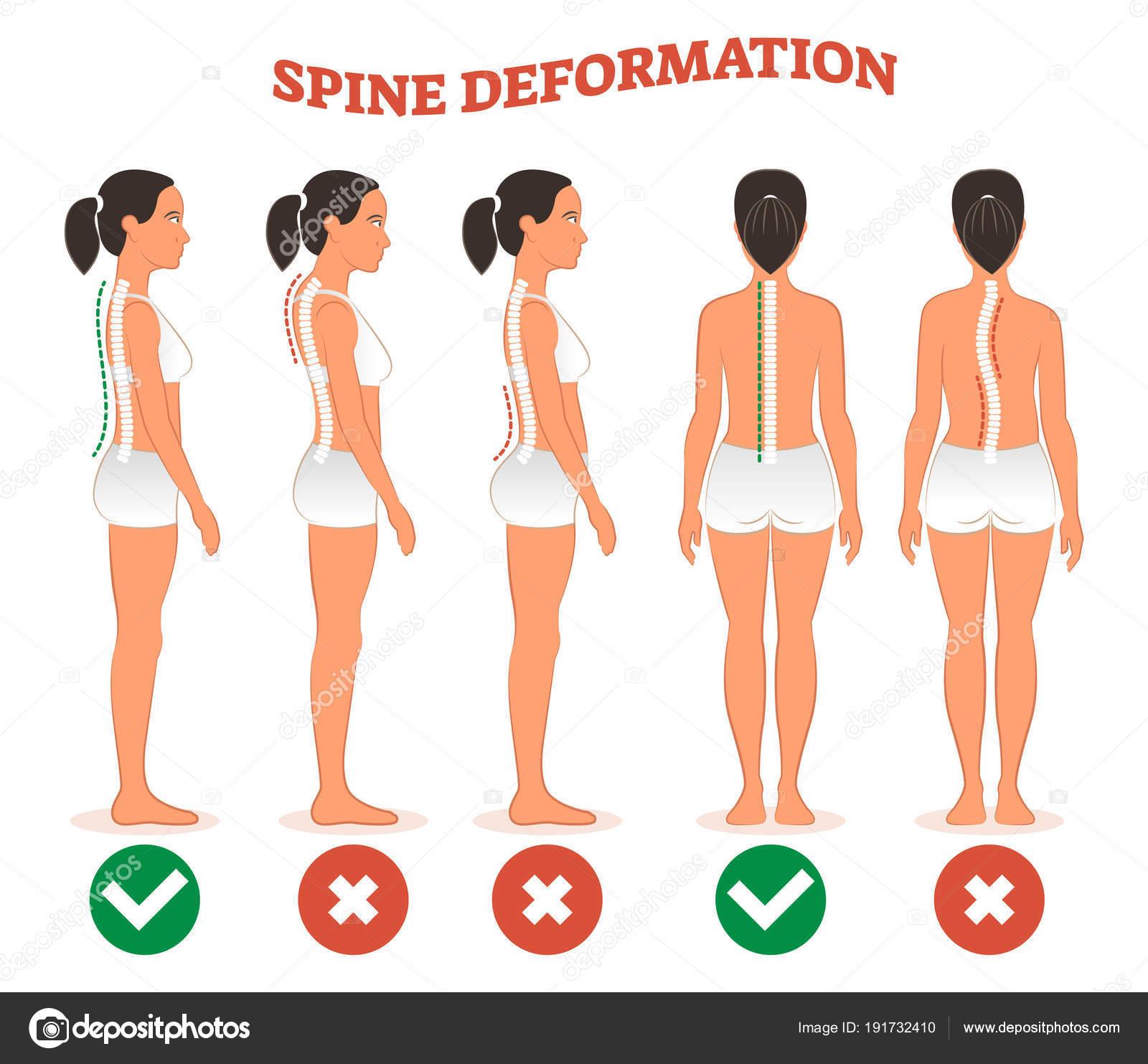 Tipos de deformación de la espina dorsal y columna vertebral sana ...