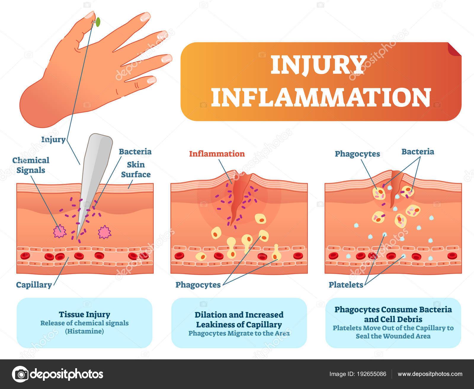 injury inflammation biological human body response vector illustration  scheme  skin surface injury cross section poster
