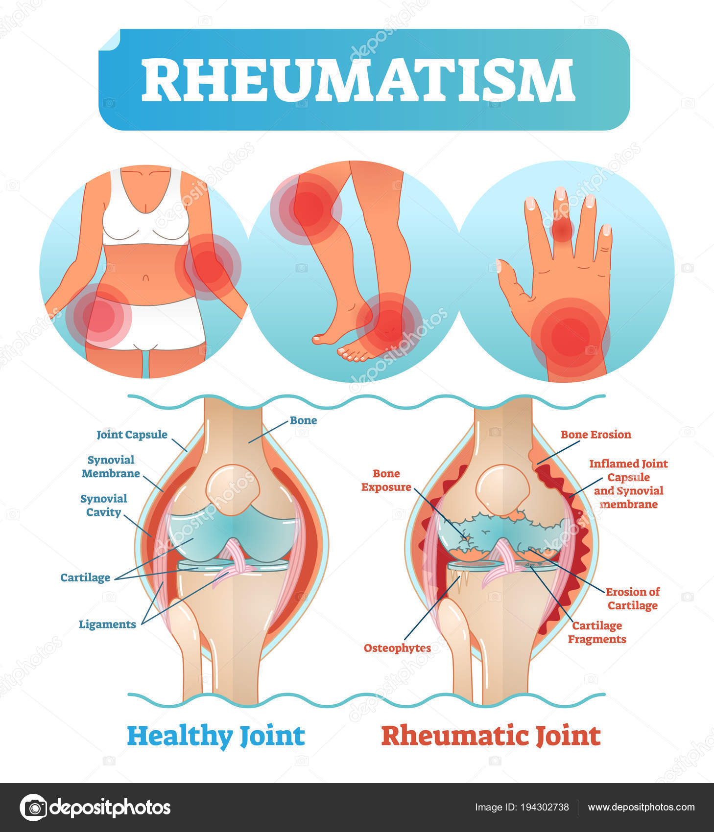 Diagrama de cartel reumatismo médica salud vector ilustración con ...