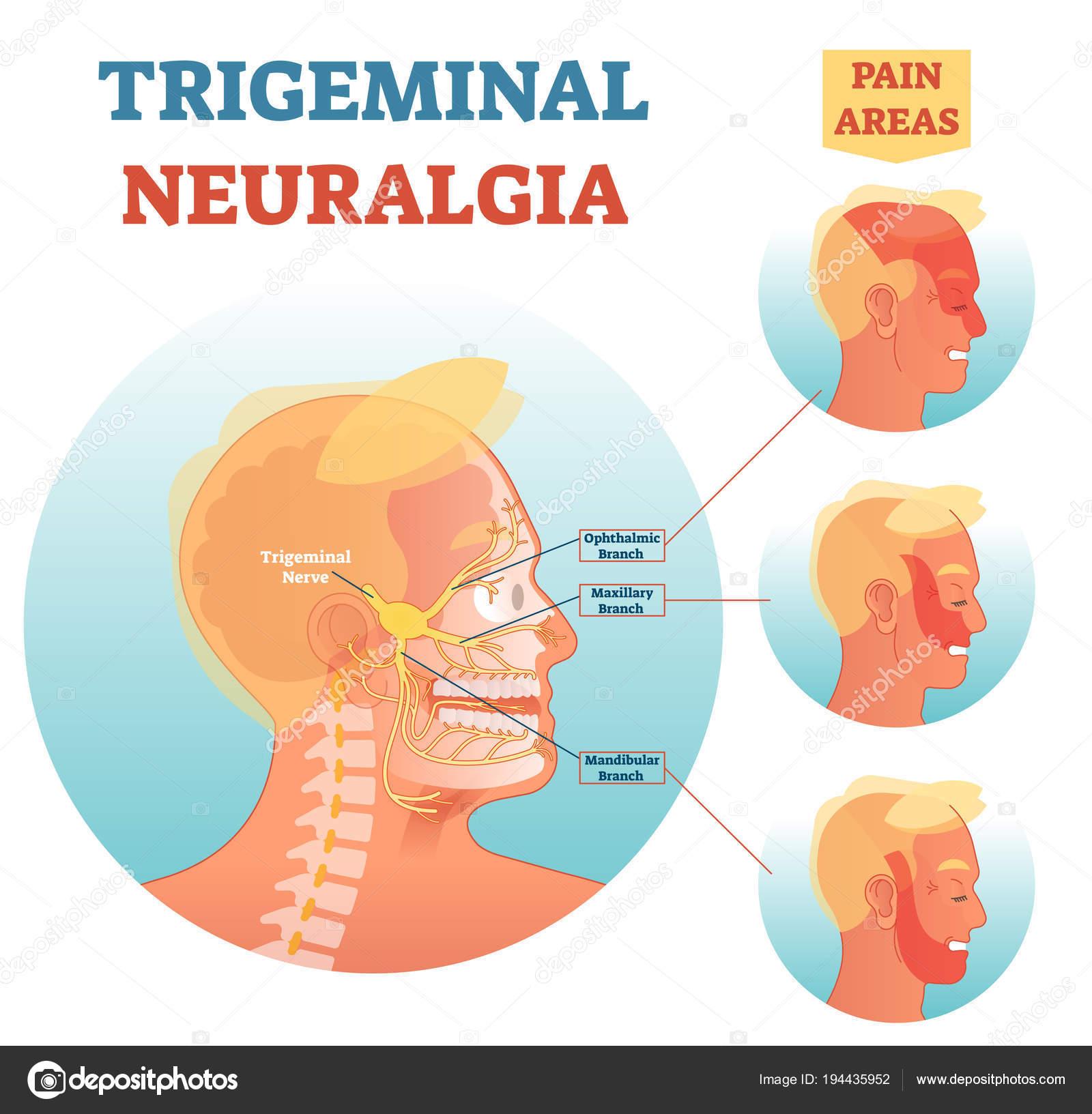 Trigeminusneuralgie medizinische Querschnitt Anatomie Abbildung ...
