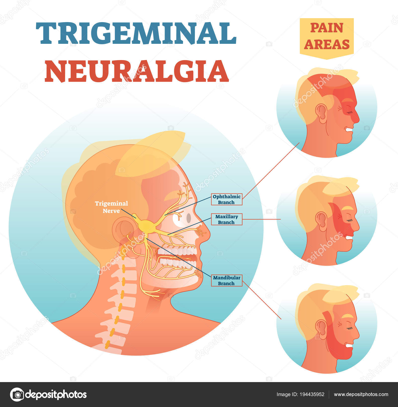 Diagrama de ilustración vectorial de neuralgia del trigémino médica ...