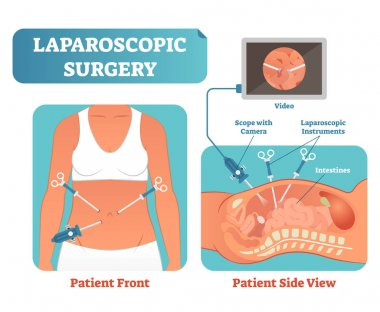 Laparoscopic surgery medical health care surgical procedure process, anatomical cross section vector illustration diagram.