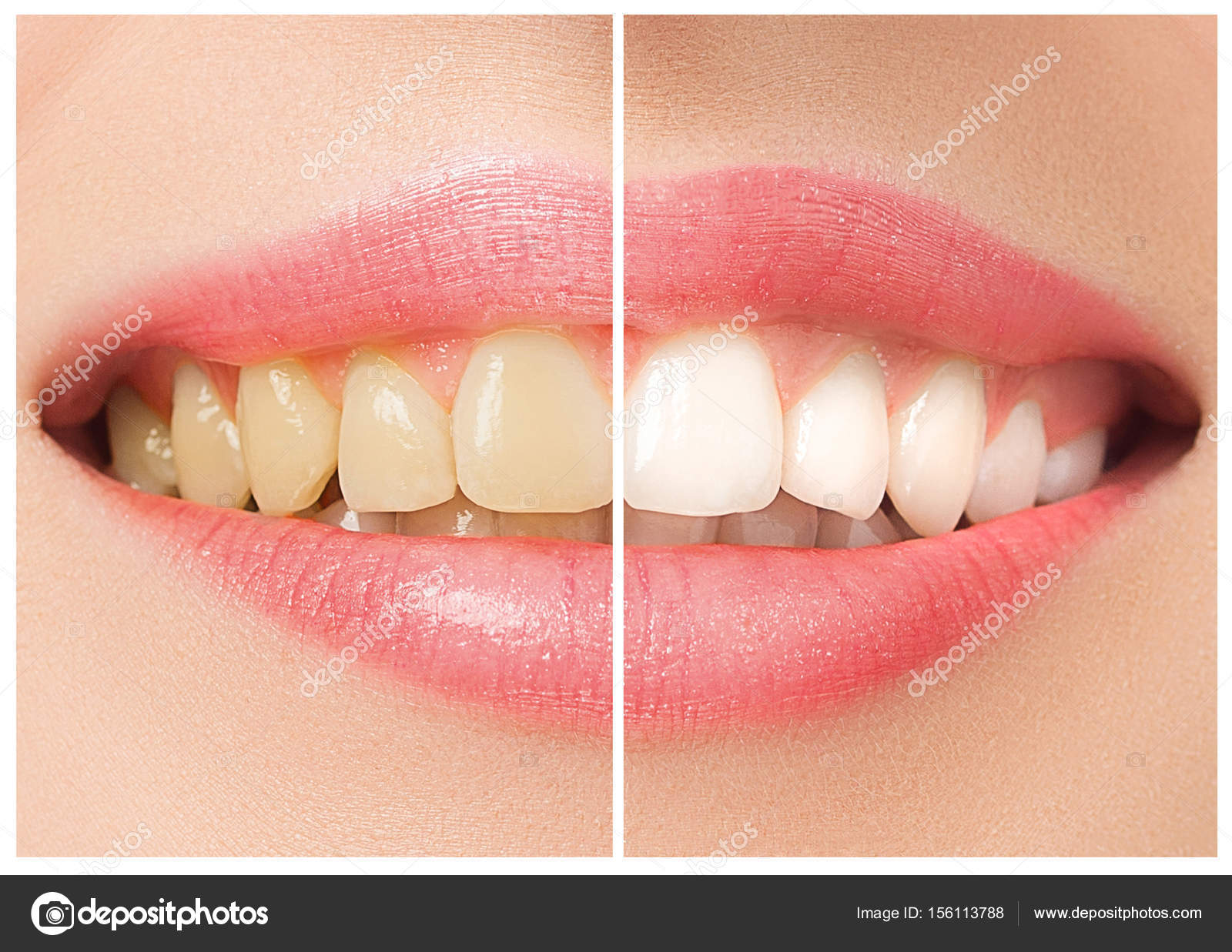 Os Femeas Dentes Antes E Depois Do Clareamento Stock Photo